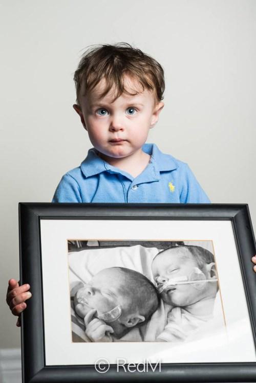 Φωτογραφίες πρόωρων μωρών που τα κατάφεραν 7982792f591