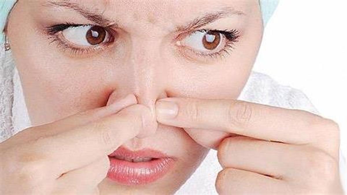 Πώς «φεύγουν» τα μαύρα στίγματα από τη μύτη