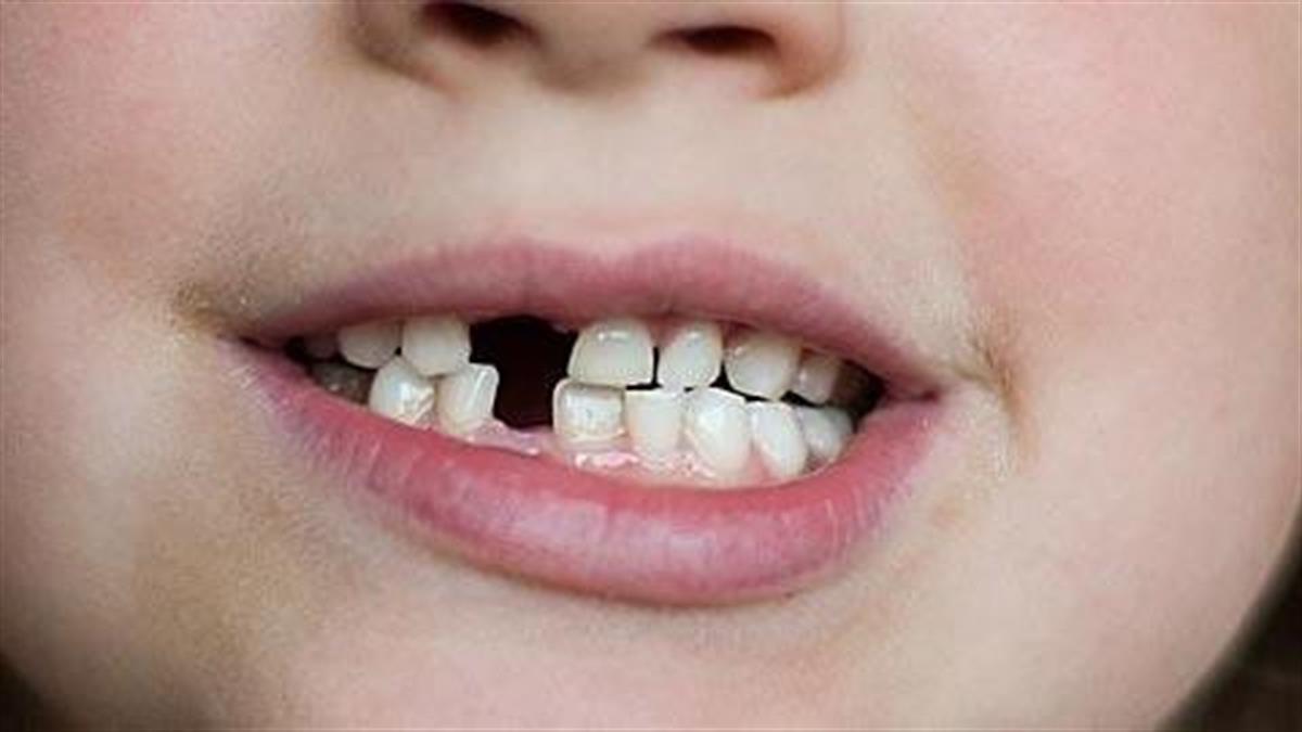 Γιατί η κόρη μου τρίζει συνέχεια τα δόντια της όταν κοιμάται;