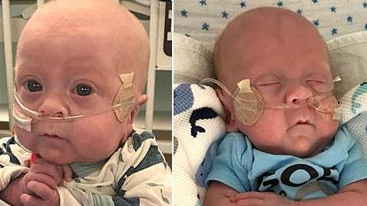 Πρόωρο μωρό κερδίζει τη μάχη για τη ζωή
