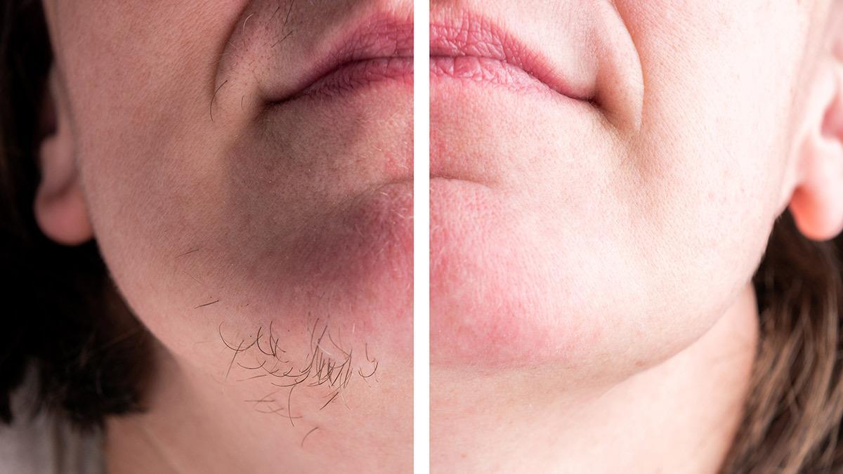 5 φυσικοί τρόποι για να περιορίσετε την ανεπιθύμητη τριχοφυΐα προσώπου