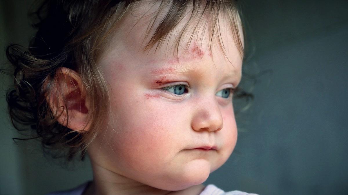 Πρώτες βοήθειες: τι κάνουμε όταν το παιδί χτυπήσει στο κεφάλι και σε ακόμη 5 επικίνδυνες καταστάσεις