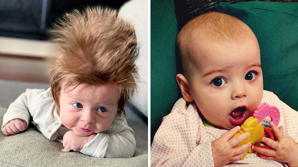 Γιατί κάποια μωρά γεννιούνται με μαλλιά και άλλα με... δυο τρίχες στην κεφαλή