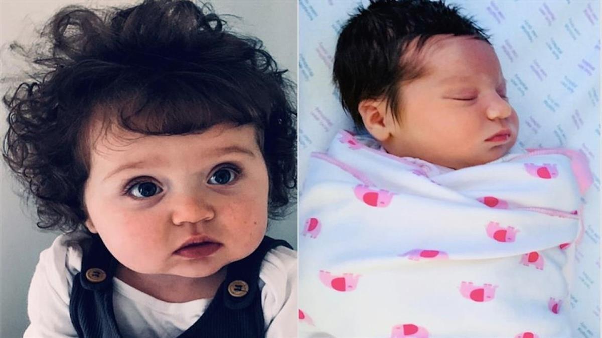 Κοριτσάκι γεννήθηκε με τόσο πυκνά μαλλιά που στον 1 χρόνο την μπερδεύουν με νήπιο
