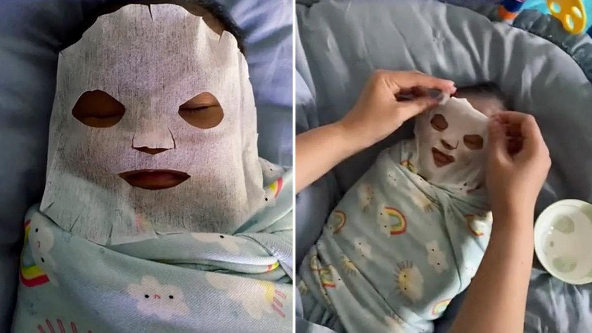 Μαμά έφτιαξε μάσκα προσώπου κατά της βρεφικής ακμής από... μητρικό γάλα!