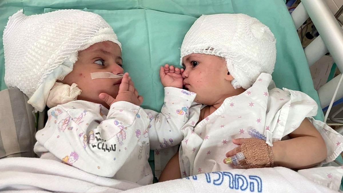 Σιαμαία κοριτσάκια κοιτάχτηκαν για πρώτη φορά μετά την επέμβαση
