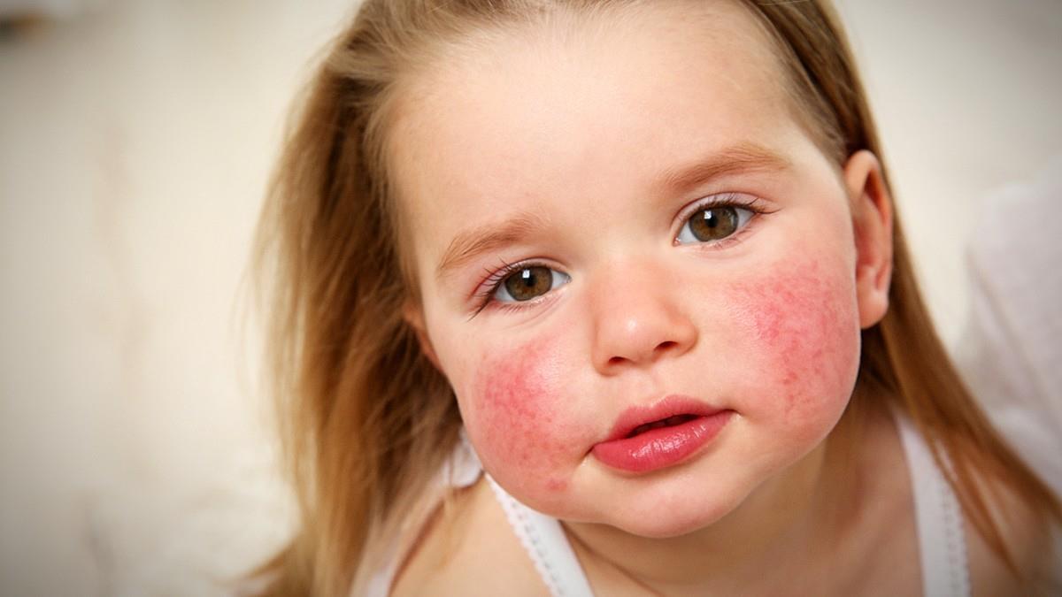 Όταν αφήνεις ένα αλλεργικό παιδί στην ευθύνη του σχολείου, ανησυχείς κάθε λεπτό