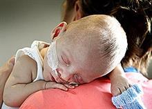 Επιστημονικό θαύμα: Ελληνόπουλο γεννήθηκε μόλις 395 γραμμάρια και... επέζησε!