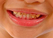Ποια είναι η νούμερο 1 τροφή που χαλάει τα δόντια των παιδιών;