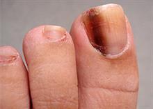 Τι «μαρτυρούν» τα πόδια για την υγεία σας