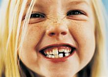 Τι πρέπει να κάνετε αν το παιδί σας έχει στραβά δόντια