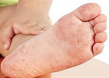 Πώς να αναγνωρίσετε τον ιό Κοξάκι μέσα από 10 φωτογραφίες