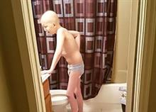 Όλη η αλήθεια για τον παιδικό καρκίνο μέσα από μια συνταρακτική φωτογραφία