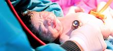 Σοκαριστικό βίντεο: Μωρό βγάζει μόνο του το κεφάλι του σε καισαρική