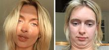 Μια σταρ του Instagram αποκαλύπτει την πραγματικότητα πίσω απ' την «τέλεια» εικόνα της!