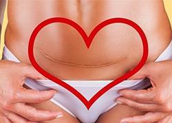 3 μεγάλες αλήθειες για τις μαμάδες που έχουν κάνει καισαρική