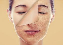 Γιατί το δέρμα σας είναι ξηρό και πώς να το κάνετε απαλό