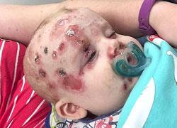 Έκκληση μιας μαμάς στους γονείς να εμβολιάζουν τα παιδιά τους μετά την περιπέτεια υγείας του μωρού της
