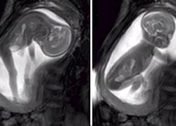 Νέα μέθοδος λεπτομερούς απεικόνισης του εμβρύου μέσω... βίντεο!