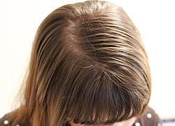 Πώς να μην λαδώνουν τα μαλλιά σας