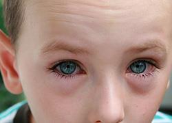 Ερεθισμένα παιδικά μάτια: Να ανησυχήσετε ή όχι
