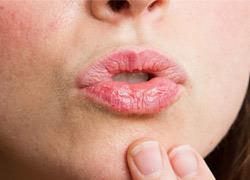 7 τρόποι να απαλλαγείτε από τα σκασμένα χείλη