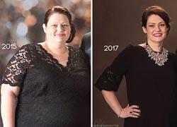 Αυτή η γυναίκα έχασε 70 κιλά σε 2 χρόνια και μοιράζεται τις συμβουλές του διατροφολόγου της