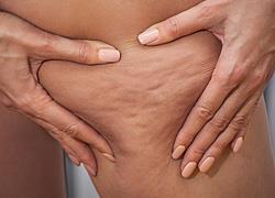 Τι να τρώτε για να μειώσετε την κυτταρίτιδα