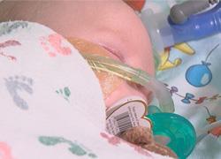 Βρεφική αλλαντίαση: Όσα πρέπει να γνωρίζουμε για την θανατηφόρο δηλητηρίαση