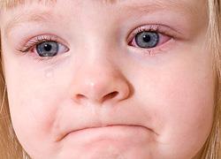 Επιπεφυκίτιδα στα παιδιά  Ποια είναι τα συμπτώματα και πώς αντιμετωπίζεται 348dd824590