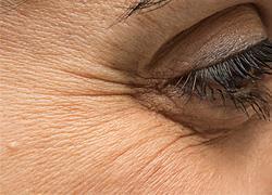 Πώς να φροντίσετε σωστά την περιοχή γύρω από τα μάτια για να μην κάνετε ρυτίδες