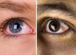 Τα μάτια είναι ο καθρέφτης της ψυχής, αλλά και της υγείας σας