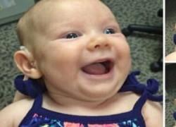 Θεσσαλονίκη: Κλινική χάρισε ακοή σε 25 μωράκια με βαριά βαρηκοΐα