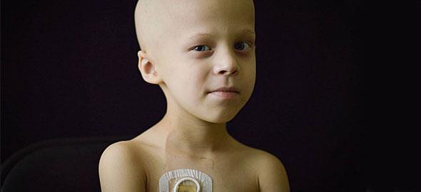 Πώς είναι να μεγαλώνεις ένα παιδί με καρκίνο σε 35 συγκλονιστικές φωτογραφίες