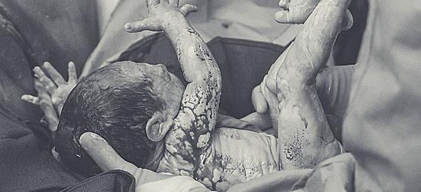 Οι συγκλονιστικότερες φωτογραφίες τοκετών που έχετε δει