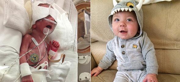 10 πρόωρα μωρά που πάλεψαν σκληρά και τα κατάφεραν!