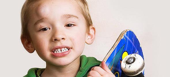 Τα πιο συχνά μικροατυχήματα των παιδιών και πώς να τα αντιμετωπίσετε