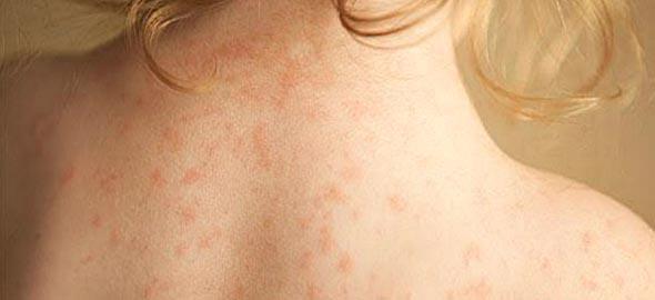 Μηνιγγίτιδα Β: Μετάδοση, συμπτώματα και πρόληψη