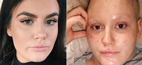 Πολεμώντας τον καρκίνο του μαστού στα 21: Το μήνυμα μιας πολύ δυνατής κοπέλας