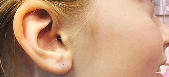«Γιατί δεν πίεσα την κόρη μου να τρυπήσει τα αυτιά της»: Το μάθημα ζωής ενός μπαμπά στην κόρη του