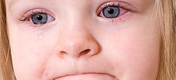 Επιπεφυκίτιδα στα παιδιά: Ποια είναι τα συμπτώματα και πώς αντιμετωπίζεται