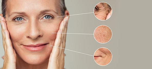 Τι δείχνουν οι ρυτίδες του προσώπου για την υγεία μας